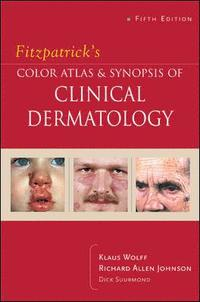 bokomslag Fitzpatrick's Color Atlas & Synopsis of Clinical Dermatology