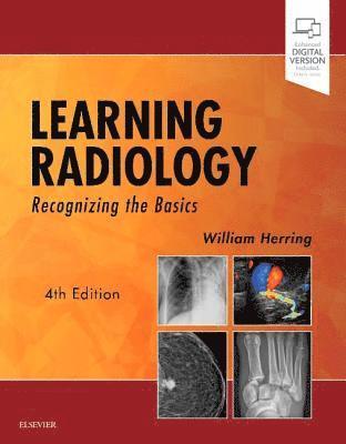 bokomslag Learning Radiology: Recognizing the Basics