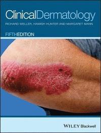 bokomslag Clinical Dermatology