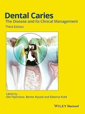 bokomslag Dental Caries: The Disease and its Clinical Management, 3rd Edition