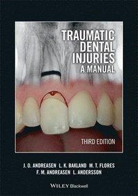 bokomslag Traumatic Dental Injuries