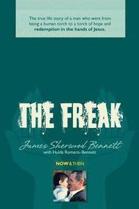 bokomslag The Freak: The true life story of a man who went from being a human torch to a torch of hope and redemption in the hands of Jesus
