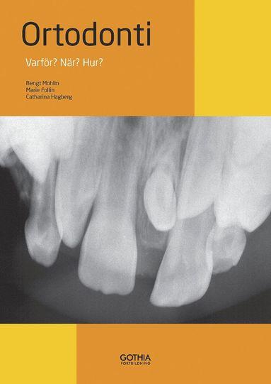 bokomslag Ortodonti : varför? när? hur?