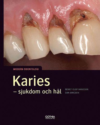 bokomslag Karies : sjukdom och hål