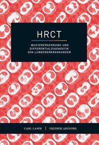 bokomslag HRCT - Mustererkennung und Differentialdiagnostik von Lungenerkrankungen