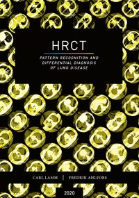 bokomslag HRCT : pattern recognition and differential diagnosis of lung disease